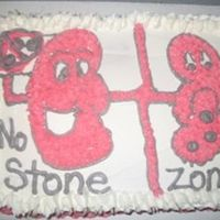 "Kidney Stone Cake I made this cake as a fun joke for my good friend who had a kidney stone. ""No Stone Zone"""