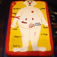 Operation Game Triple Chocolate with Dark Chocolate Ganache covered in fondant. Body organs are removable!