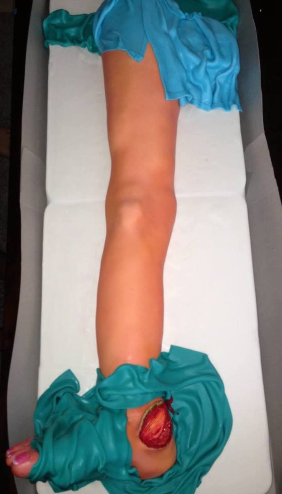 Surgical Cake  on Cake Central
